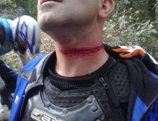 Collare di protezione Enduro Bike MTB